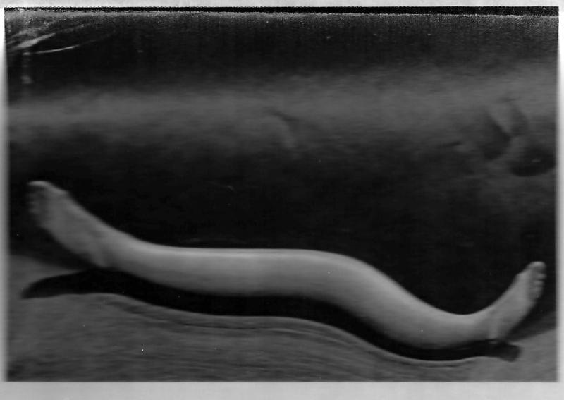 28f. Partrimoine photographique. L'Etat ne soigne pas son image Le Monde 5 juillet 2008. Négatif scanné de Distortion N° 46 d'André Kertész qui laisse voir une chaise et ne respecte pas le cadrage original. @min de la culture.tif
